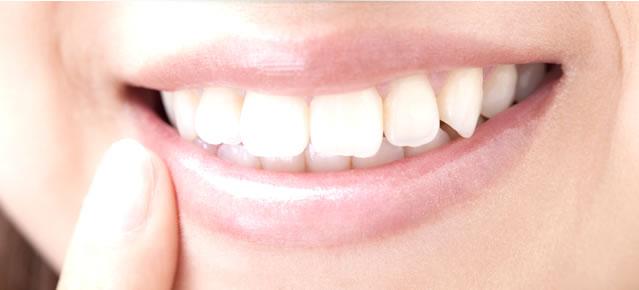 歯を削らずに、健康的に、白く、美しく