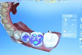 STEP4 口腔内へセットして治療完了